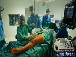 W Osielsku zaczęli leczyć żylaki operacyjnie za pomocą pary wodnej